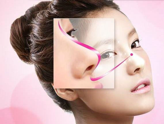 mũi hếch Giải pháp nào cho chiếc mũi hếch kém duyên?