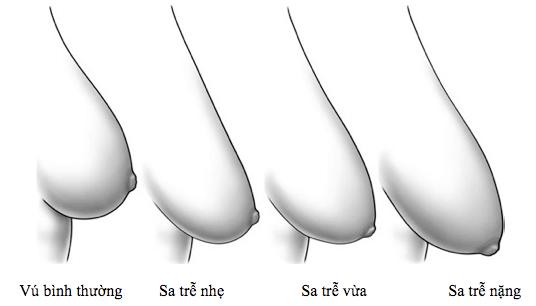 nâng ngực an toàn Giải cứu vòng 1 chảy xệ nhờ nâng ngực an toàn
