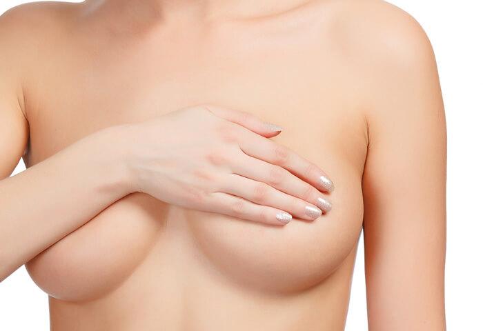nâng ngực chảy xệ