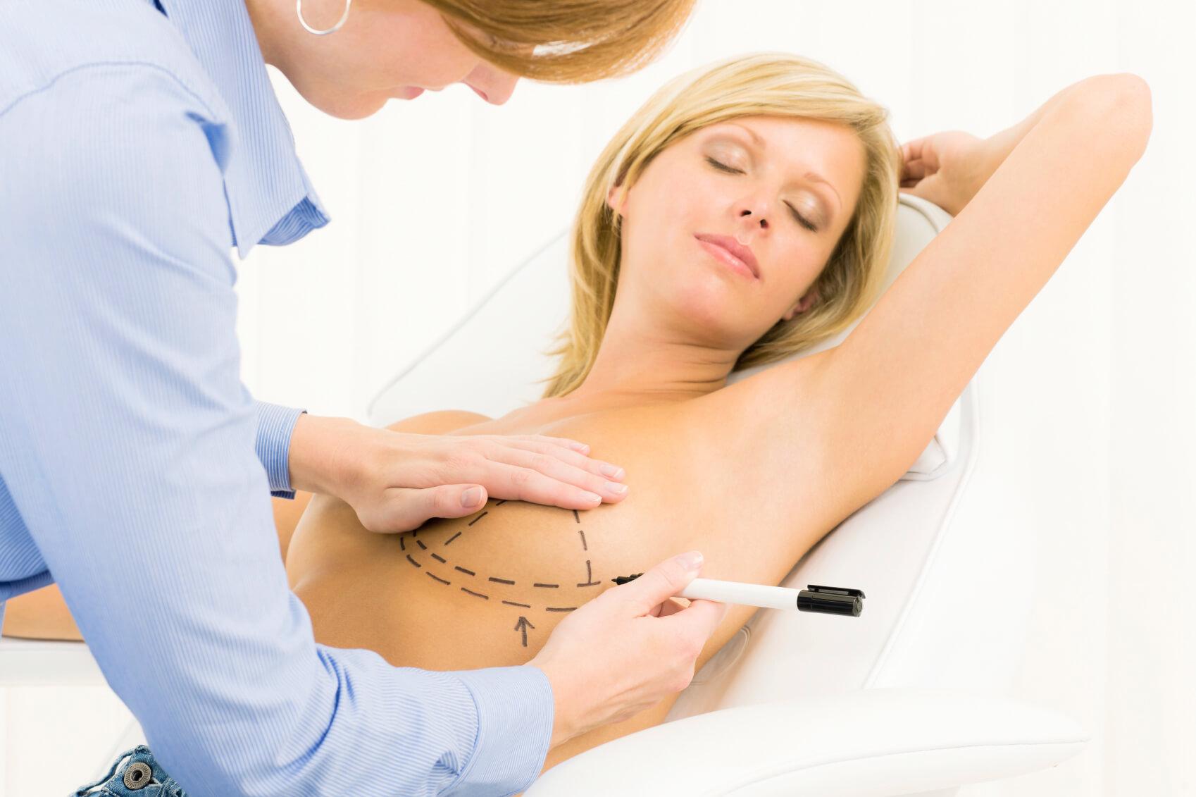 nâng ngực nội soi 60' nâng ngực nội soi để sở hữu vòng 1 hoàn hảo