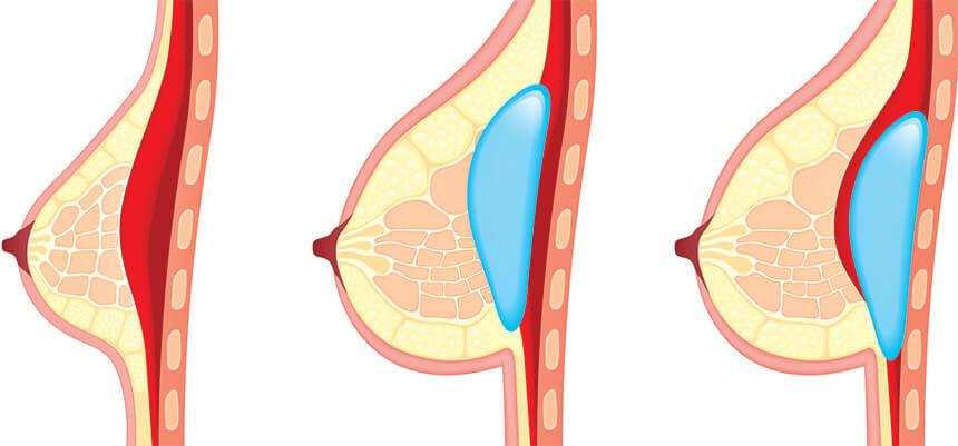 Trực quan hình ảnh đưa túi đôn nâng ngực nội soi Nâng Ngực Nội Soi