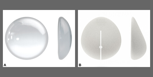 Các loại túi độn nâng ngực nội soi Nâng Ngực Nội Soi
