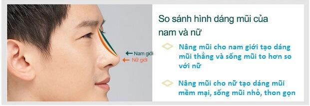 phẫu thuật nâng mũi nam giới