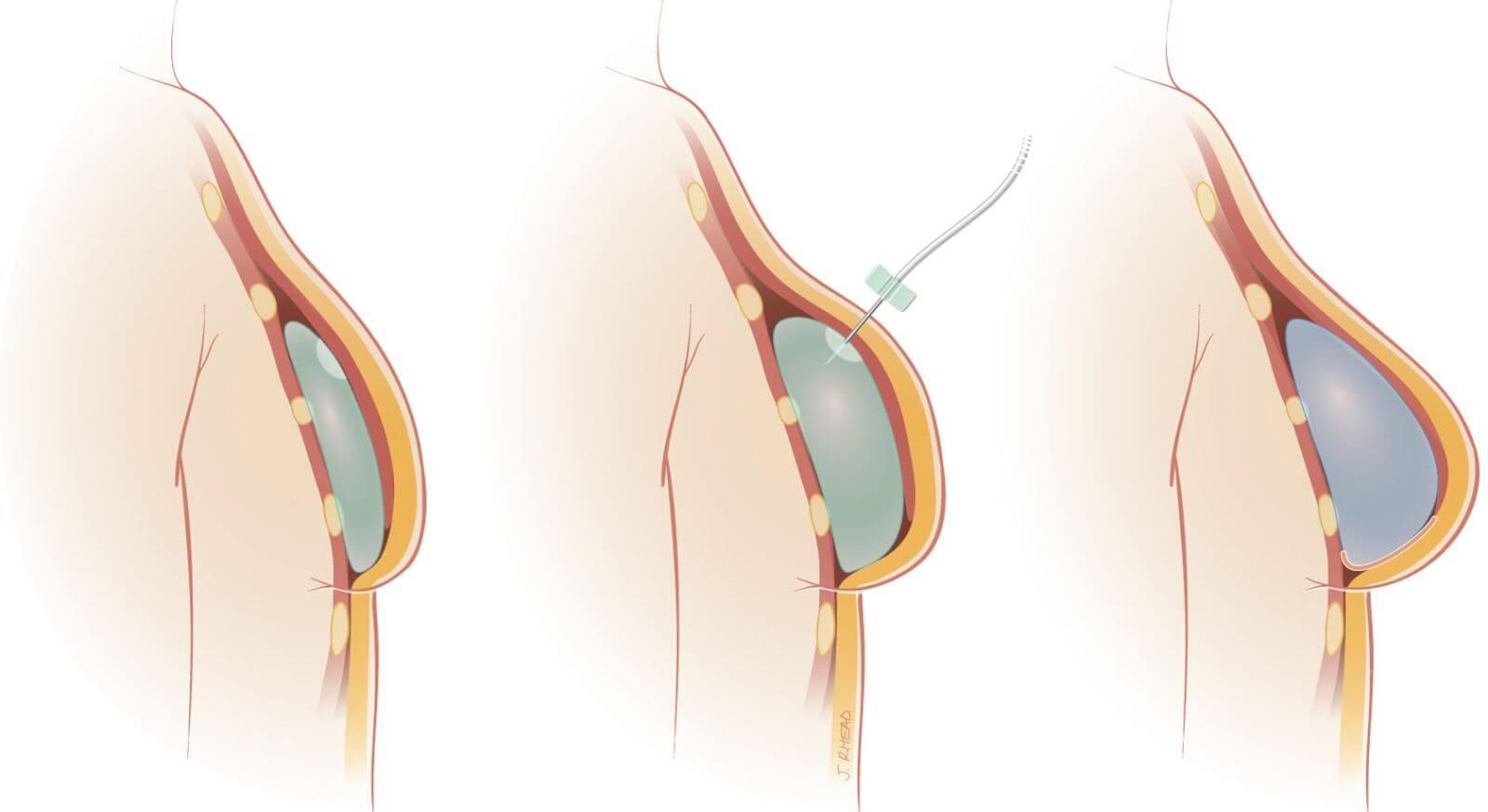 phẫu thuật nâng ngực có đau không