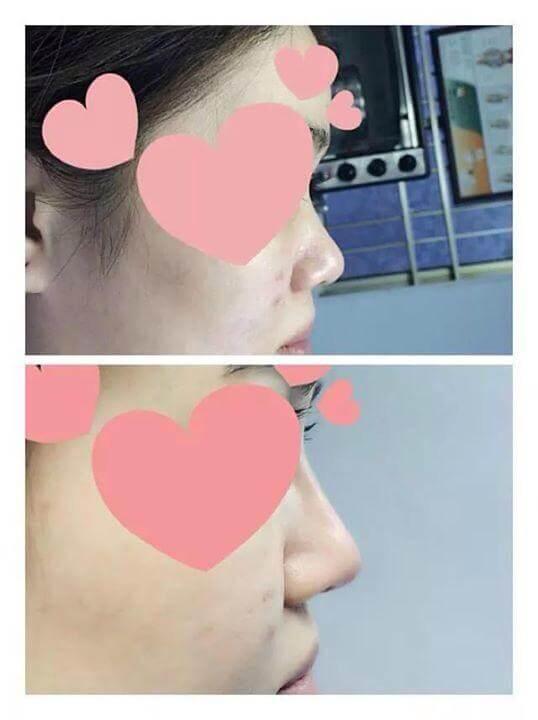 Rộ mốt nâng mũi chỉ bằng tiêm một mũi tiêm filler Rộ mốt nâng mũi bằng tiêm Filler