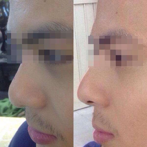 Rộ mốt nâng mũi chỉ bằng một mũi tiêm filler Rộ mốt nâng mũi bằng tiêm Filler