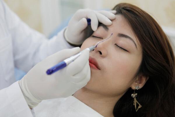 sửa mũi ở đâu đẹp Sửa mũi ở đâu đẹp và an toàn nhất?
