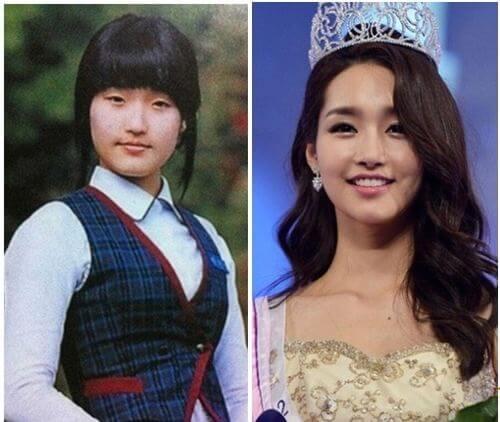 'Hoa hậu dao kéo' nổi tiếng của Hàn Quốc Kim Yu Mi phải nhờ tới công nghệ thẩm mỹ để trở nên xinh đẹp và cuốn hút như bây giờ. Bấm mí đẹp tự nhiên đẹp như sao Hàn Quốc
