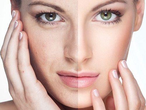 Căng da mặt bằng chỉ sinh học Điều kỳ diệu từ căng da mặt bằng chỉ sinh học