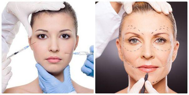 căng da mặt không cần phẫu thuật Có thể căng da mặt không cần phẫu thuật?