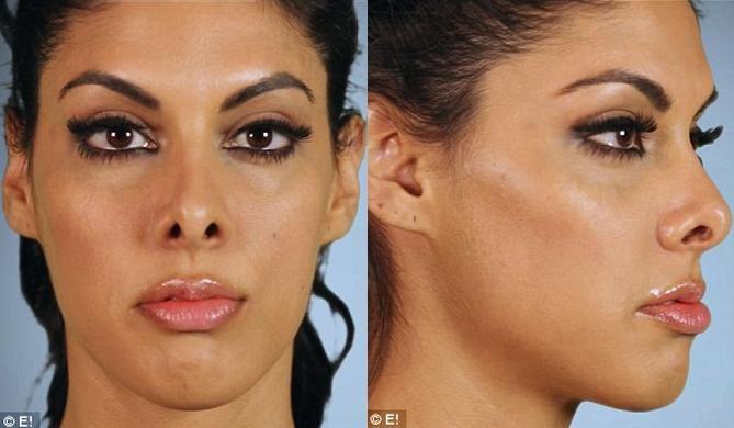"""cuộc """"cách mạng"""" của nàng hoa hậu có chiếc mũi xấu xí Cuộc cách mạng của nàng hoa hậu phẫu thuật thẩm mỹ chiếc mũi thô xấu xí"""