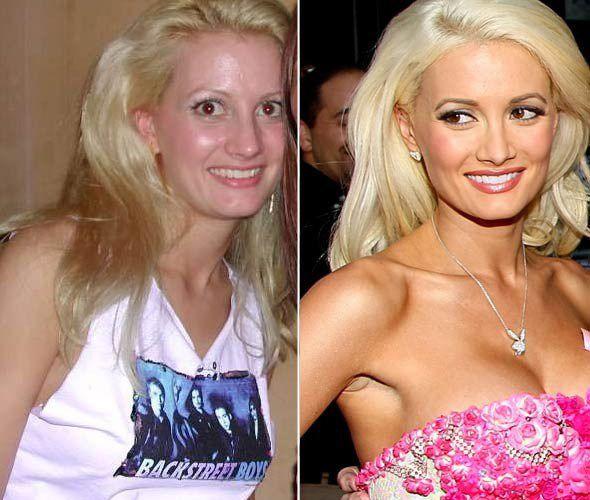 """Người mẫu Playboy Holly Madison đã phải sửa mũi, nâng ngực để tìm cơ hội ở Hollywood. """"Phẫu thuật thẩm mỹ đã giúp tôi dễ dàng hơn trong sự nghiệp. Không có ngoại hình bắt mắt, tôi không có được như ngày hôm nay"""" – Holly thừa nhận trong một cuộc phỏng vấn. Điểm mặt sao Hollywood nóng bỏng hơn nhờ """"dao kéo"""""""
