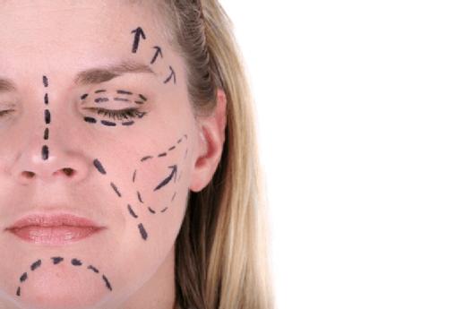 giá cả căng da mặt Giá cả căng da mặt ở Thẩm mỹ Bác sĩ Điền thế nào?
