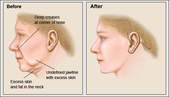 Làm sao để căng da mặt Làm sao để căng da mặt và đẩy lùi lão hóa?