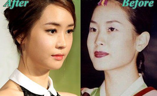 nhung-sao-han-thua-nhan-tham-my-mat-4 Những sao Hàn thừa nhận thẩm mỹ mắt