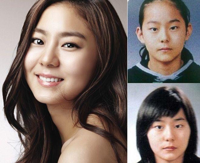nhung-sao-han-thua-nhan-tham-my-mat-6 Những sao Hàn thừa nhận thẩm mỹ mắt