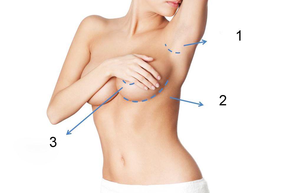 phẫu thuật nâng vú
