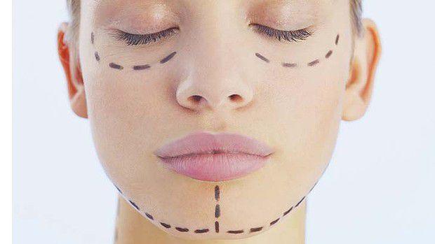 Thẩm mỹ khuôn mặt 3D Tuyệt chiêu thẩm mỹ khuôn mặt V line 3D hiện đại