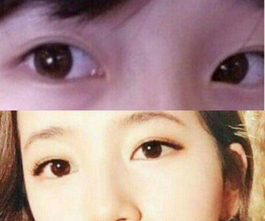 tình đầu quốc dân Suzy bị nghi thẩm mỹ mắt Tình đầu quốc dân Suzy bị nghi thẩm mỹ mắt