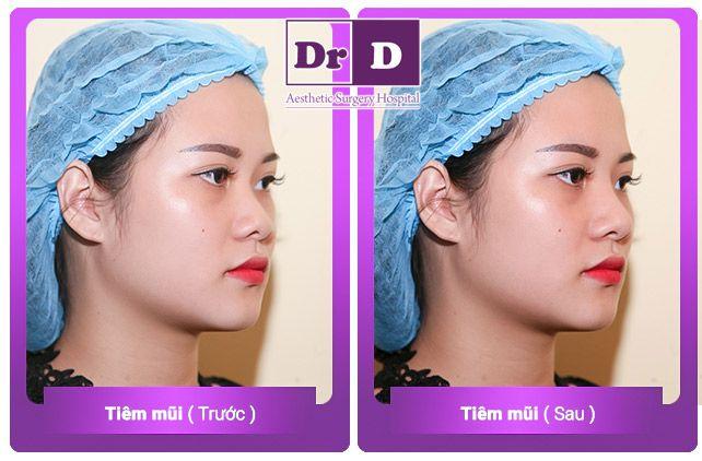 hình ảnh khách hàng nâng mũi bác sĩ điền