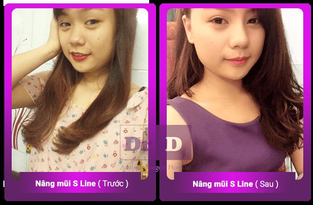 Nâng mũi S line bác sĩ Điền Nâng mũi S line bác sĩ Điền có gì khác biệt?