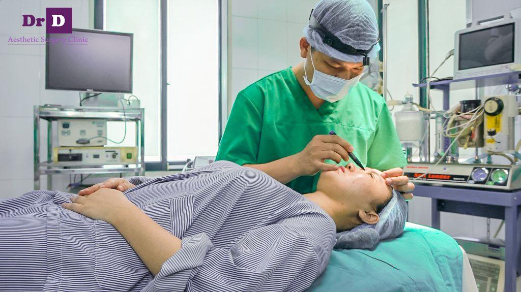 nâng mũi viện thẩm mỹ bác sĩ điền đẹp và an toàn Nâng mũi Viện thẩm mỹ bác sĩ Điền đẹp và an toàn