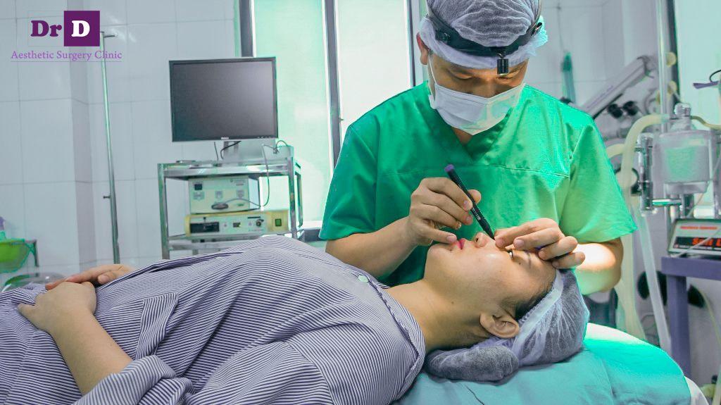 tang-10-trieu-nang-mui-sline-tai-tham-my-bac-si-dien Tặng 10 triệu khi nâng mũi S line tại Thẩm mỹ Bác sĩ Điền