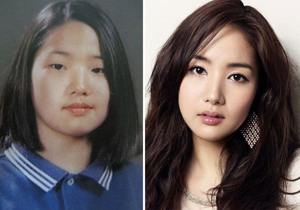 Park Min Young Sao dính nghi án phẫu thuật gọt mặt Hàn Quốc