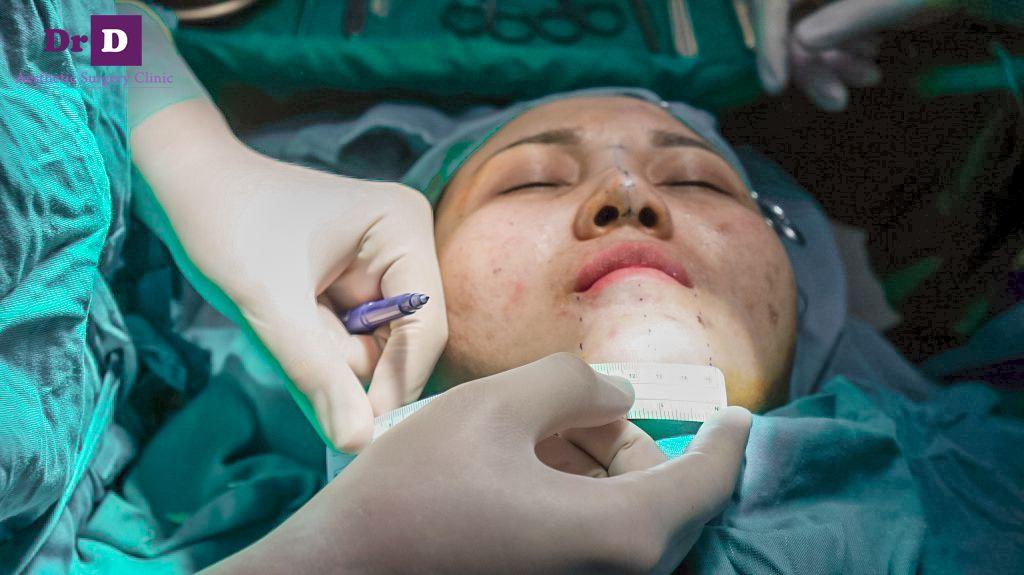 phẫu thuật độn cằm lẹm Phẫu thuật độn cằm lẹm công nghệ Hàn Quốc
