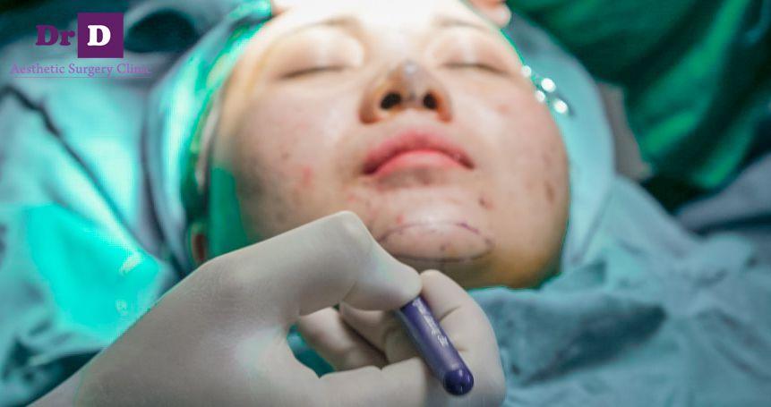 don-cam-tham-my-1 Độn cằm thẩm mỹ: phẫu thuật hay không phẫu thuật?