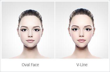 Kết quả hình ảnh cho mặt v line và mặt trái xoan