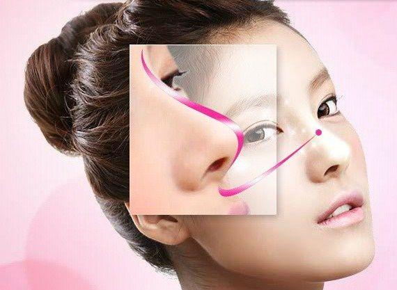 Mũi S-line bán cấu trúc đẹp như thế nào Nâng mũi S line bán cấu trúc đẹp như thế nào?