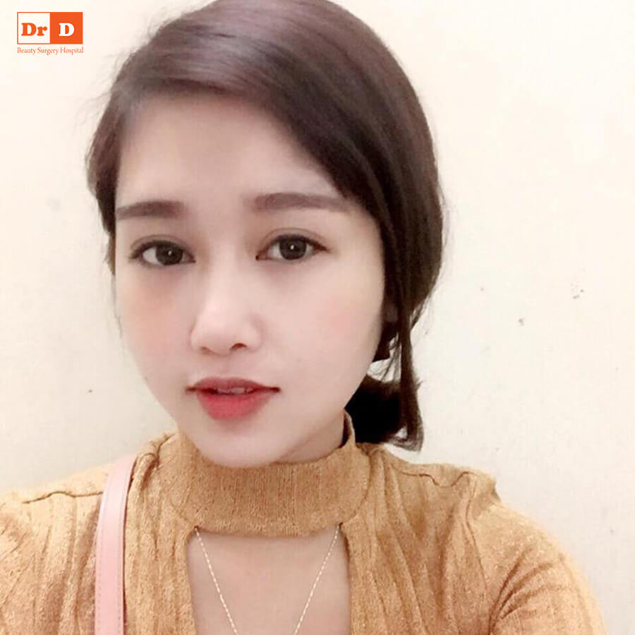 quynh-mi Cắt mí mini open