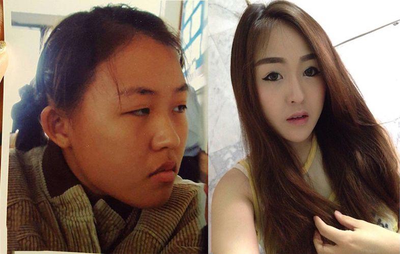 Bi chong ruong bo vi qua xau ba me don than lot xac xinh nhu Hot girl 11