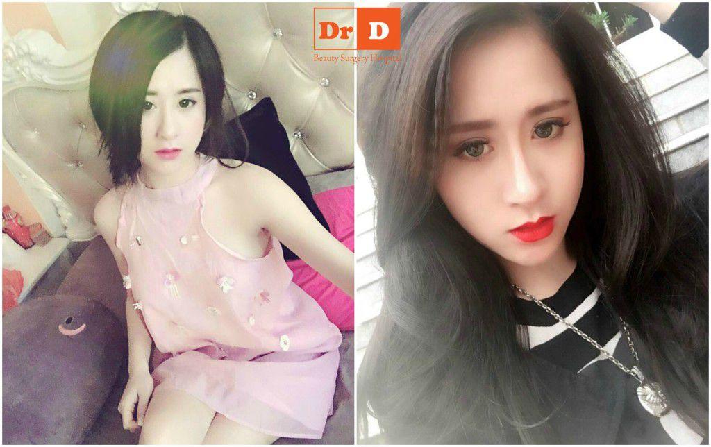 bach-trang-co-nang-9x-xinh-dep-da-tan-trang-nhan-sac-nhu-the-nao (3) Bạch Trang – cô nàng 9x xinh đẹp đã tân trang nhan sắc như thế nào?