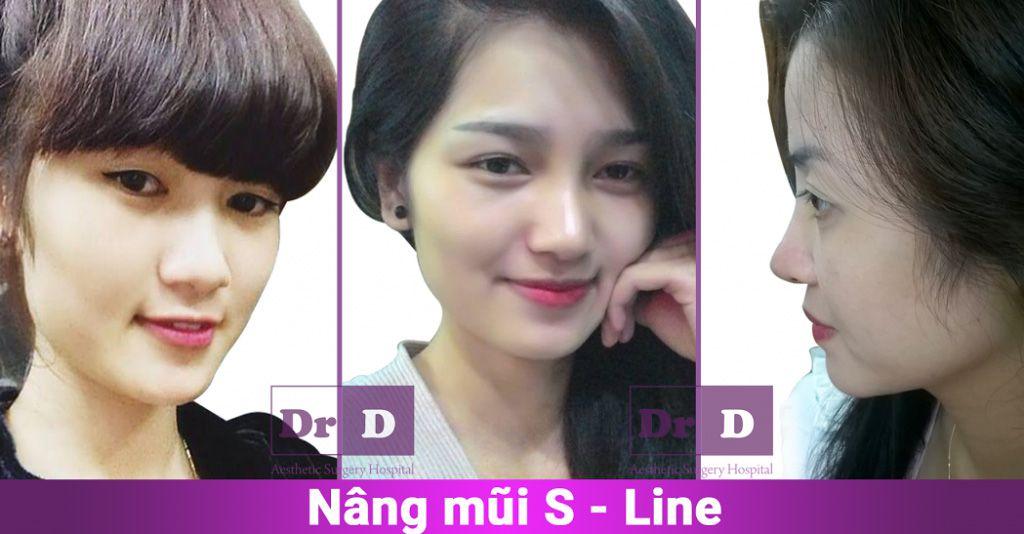 di-tim-ve-dep-hoan-hao-4 Cùng Viện thẩm mỹ Bác sĩ Điền đi tìm vẻ đẹp hoàn hảo