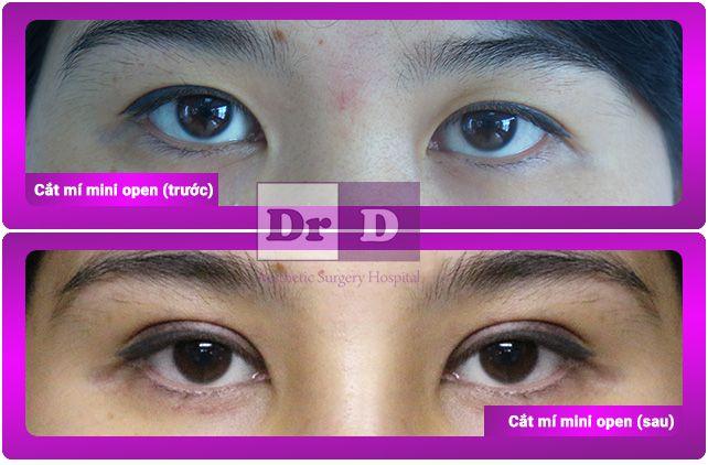 di-tim-ve-dep-hoan-hao-5 Cùng Viện thẩm mỹ Bác sĩ Điền đi tìm vẻ đẹp hoàn hảo