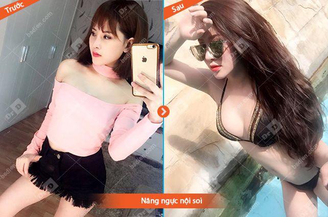 Nang-nguc-noi-soi-1 Nâng ngực