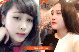 Nang-mui-S-Line Nâng mũi
