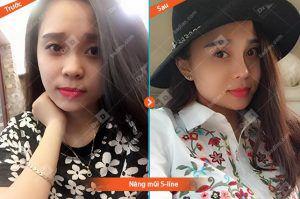 Ngoc-Minh Nâng mũi