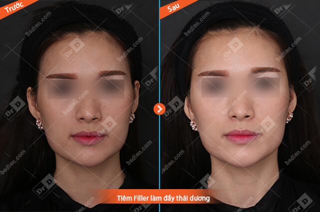 Nguyen-Thi-Thu-Filler-day-thai-duong Thẩm mỹ không phẫu thuật