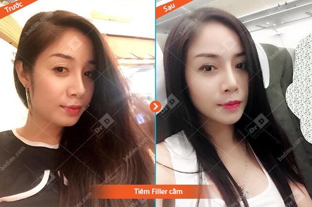 Nguyen-Thi-Thuong-cam Thẩm mỹ không phẫu thuật