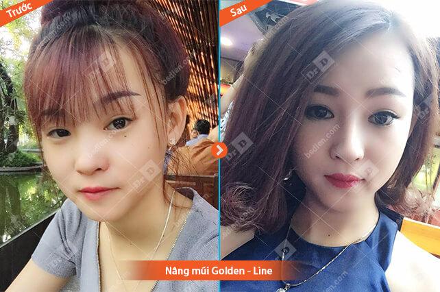 Nguyen-Thi-Tuyet-nang-mui-Golden-Line Nâng mũi
