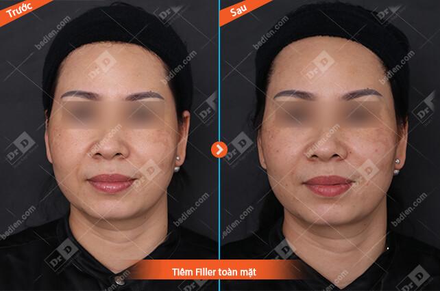 Nguyen-Thu-Huong-tiem-Filler-mat Thẩm mỹ không phẫu thuật