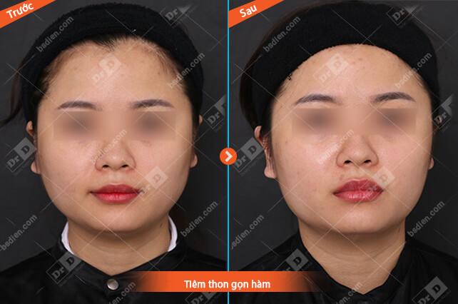Nguyen-Thu-Uyen-tiem-gon-ham Thẩm mỹ không phẫu thuật