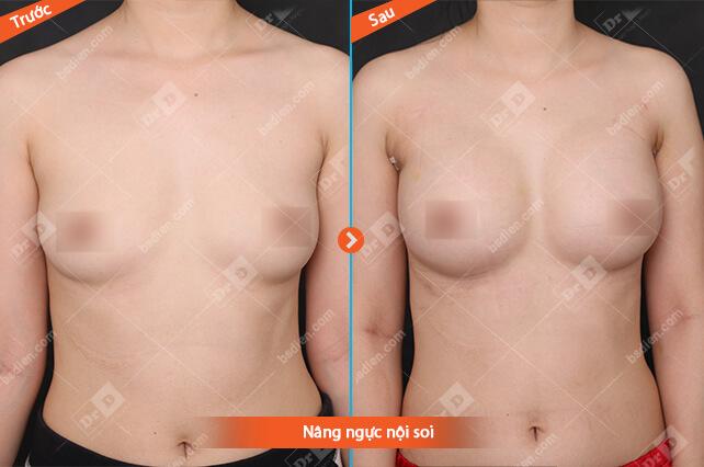 Pham-t-Huyen-Trang-nang-nguc-noi-soi Nâng ngực
