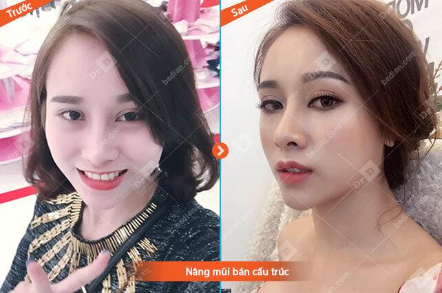 Thuy-Trang-nang-mui-ban-cau-truc Nâng mũi