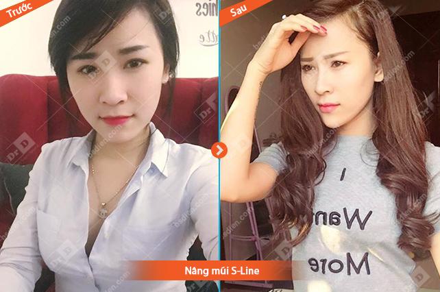 Tran-Thao-nang-mui-S-Line Nâng mũi