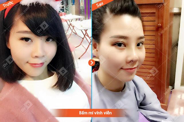 Trang-Nguyen-bam-mi-vinh-vien Thẩm mỹ mắt