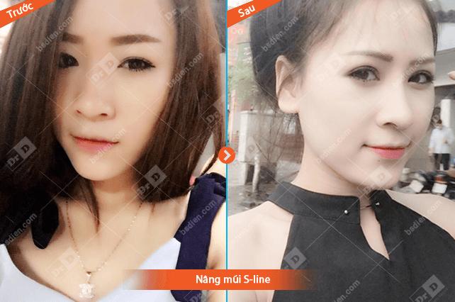 hinh-anh-truoc-sau-nang-mui-s-line (2) Nâng mũi